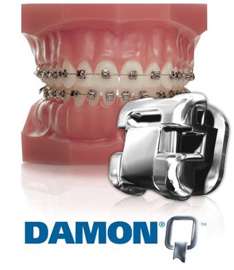 Damon Q Ormco