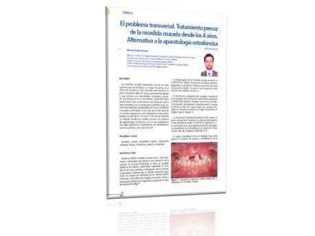 Ortodoncia Málaga Mordida Cruzada