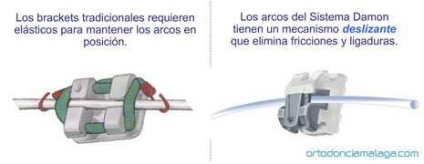 Ortodoncia Málaga Damon