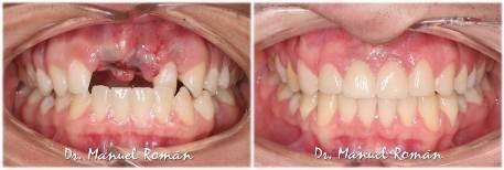 Ortodoncia Málaga Implantes