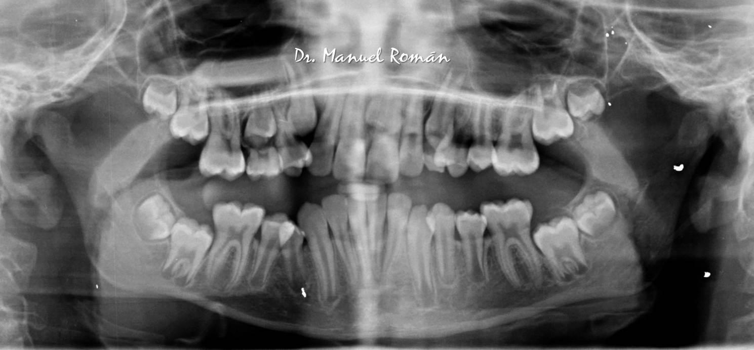 Ortodoncia Málaga Radiografía