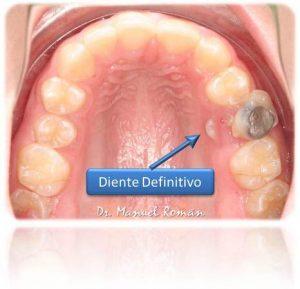 Ortodoncia Málaga Diente Leche