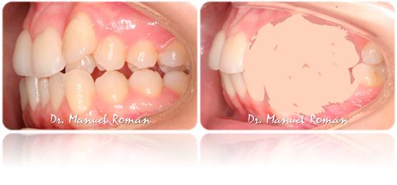 ortodoncia adulto sin extracciones