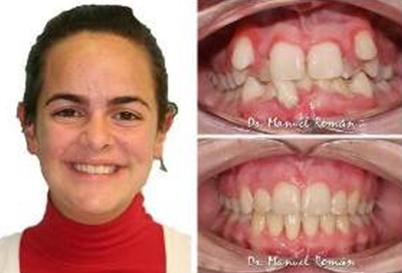 Ortodoncia Invisalign Málaga Apiñamiento extremo