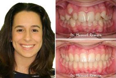Ortodoncia Invisalign Málaga Clase II