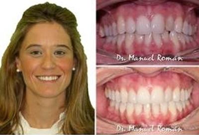 Mesializacion de molares
