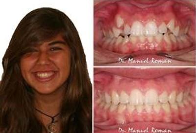 Mesialización de molares