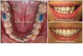Apiñamiento Ortodoncia Lingual – Adultos
