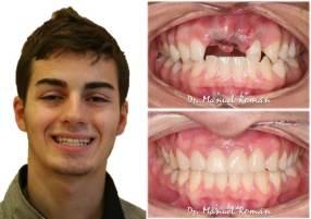 Implantes y ortodoncia – Adolescentes